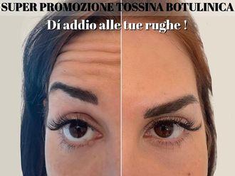 Botulino-797861