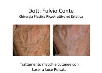 Macchie Cutanee prima e dopo