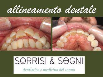 Dentisti-763856