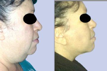 Liposcultura viso