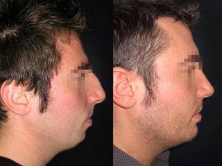 Profiloplastica prima e dopo