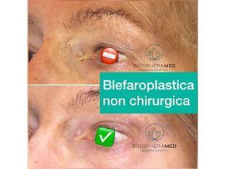 Blefaroplastica non chirurgica prima e dopo