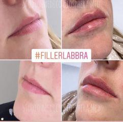 Filler labbra - Studio medico BiospheraMed