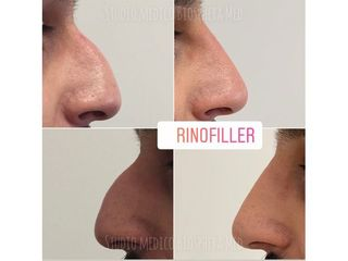 Rinofiller - Studio medico BiospheraMed
