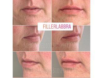 Filler labbra-789332