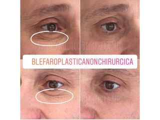Blefaroplastica non chirurgica - Studio medico BiospheraMed