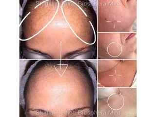 Macchie della pelle - Studio medico BiospheraMed