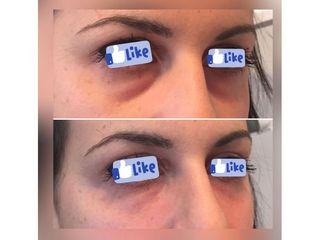 Eliminare occhiaie - Studio medico BiospheraMed