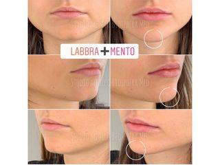 Filler labbra + mento - Studio medico BiospheraMed