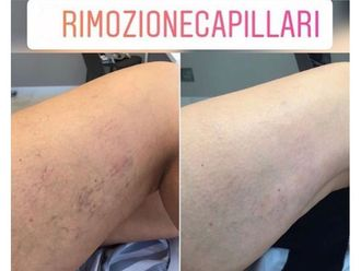Capillari-789372