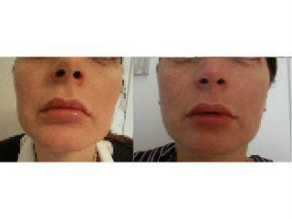 prima e dopo filler labbra