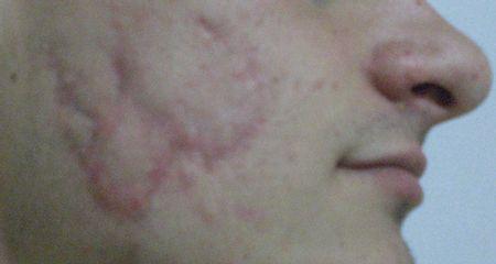 Cicatrici prima