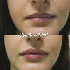 Filler labbra - Prof. Gianluca Tilesi