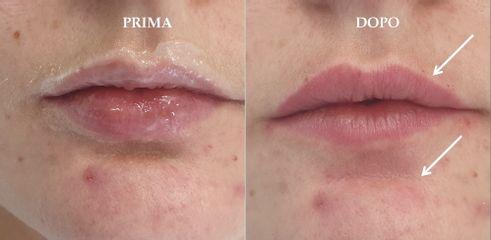 Filler labbra mento prima dopo
