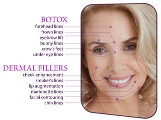 Botox Filler Anti Age