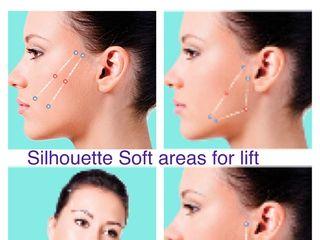 Silhouette Soft Effetto Lifting Durata 18-24 Mesi