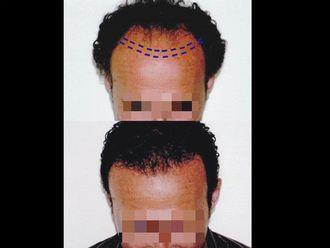 Trapianto capelli-761046