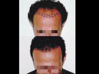 Trapianto capelli prima e dopo