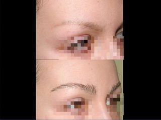 Tricopigmentazione sopracciglia pre post