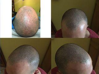 Tricopigmentazione capelli prima e dopo