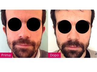 Trattamento viso prima e dopo
