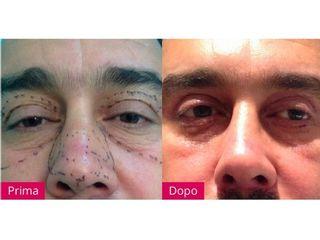 Ringiovanimento viso prima e dopo