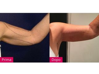 Liposcultura braccia prima e dopo
