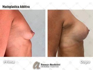 Mastoplastica additiva - Dott. Tommaso Anniboletti