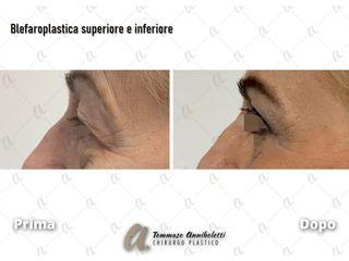 Blefaroplastica - Dott. Tommaso Anniboletti Chirurgo Plastico