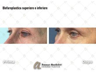 Blefaroplastica-789088
