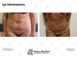 Addominoplastica - Dott. Tommaso Anniboletti Chirurgo Plastico