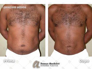 Liposuzione - Dott. Tommaso Anniboletti Chirurgo Plastico