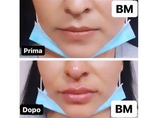Filler labbra - Dr Benoit Menye