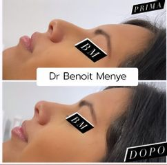 Rinofiller - Dr Benoit Menye