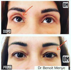 Blefaroplastica - Dr Benoit Menye