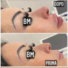 Filler labbra + Rinofiller - Dr Benoit Menye