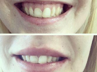 Filler labbra-789865