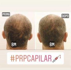 PRP Capelli - Dr Benoit Menye