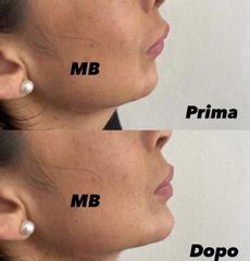 Mentoplastica - Dr Benoit Menye