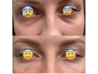 Eliminare occhiaie - Dr Benoit Menye