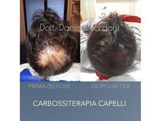 Carbossiterapia-769256