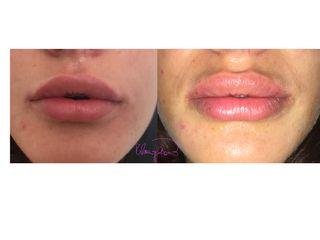 Rimodernamento labbra prima e dopo