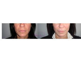 Lipofilling guancia prima e dopo