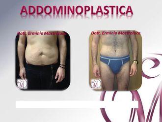 Addominoplastica-750765