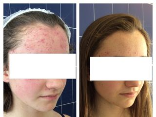 Terapia fotodinamica prima e dopo