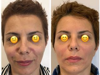 Filler e Botox prima e dopo