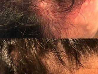 Alopecia-771006