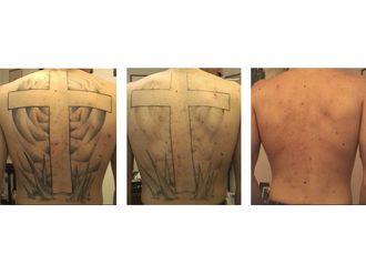 Rimozione tatuaggi-771173