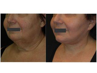 Lifting cervico-facciale prima e dopo