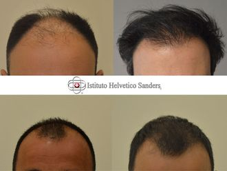 Trapianto capelli-752756